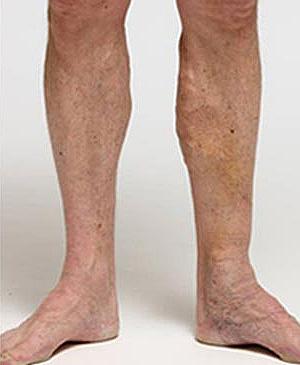 After-Efekty zabiegu skleroterapii