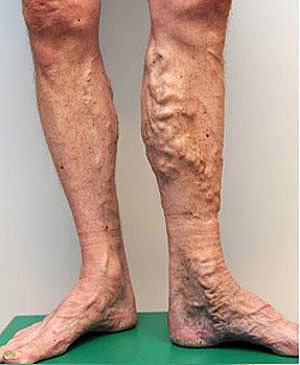Before-Efekty zabiegu skleroterapii