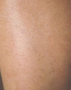 After-Efekty zabiegu zamykania naczyń